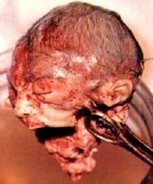 http://www.godvoter.org/Photos/abortion-head.jpg